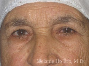 After Photo of Removal of Bumps Patient c2 of Dr. Melanie Ho Erb