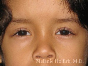 After Photo of Pediatric Child Patient c2 of Dr. Melanie Ho Erb