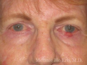 Before Photo of Removal of Bumps Patient d1 of Dr. Melanie Ho Erb