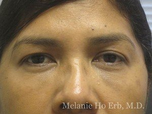 After Photo of Filler Patient d2 of Dr. Melanie Ho Erb
