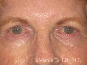 After Photo of Removal of Bumps Patient d2 of Dr. Melanie Ho Erb