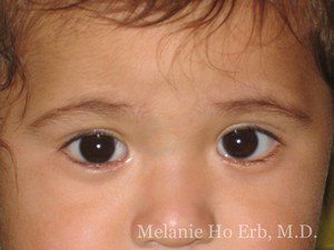 After Photo of Pediatric Child Patient d2 of Dr. Melanie Ho Erb