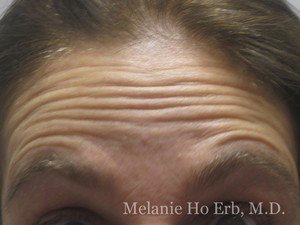 Before Photo of Botox Patient e1 of Dr. Melanie Ho Erb