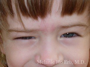 Before Photo of Pediatric Child Patient e1 of Dr. Melanie Ho Erb