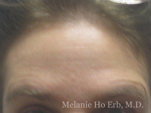 After Photo of Botox Patient e2 of Dr. Melanie Ho Erb