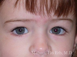 After Photo of Pediatric Child Patient e2 of Dr. Melanie Ho Erb