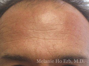 After Photo of Botox Patient f2 of Dr. Melanie Ho Erb