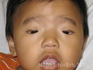 Before Photo of Pediatric Child Patient g1 of Dr. Melanie Ho Erb