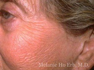 Before Photo of Laser Skin Patient a1 of Dr. Melanie Ho Erb