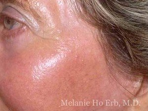 After Photo of Laser Skin Patient a2 of Dr. Melanie Ho Erb