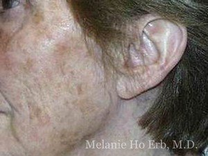 Before Photo of Laser Skin Patient b1 of Dr. Melanie Ho Erb