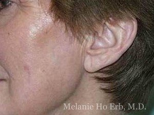After Photo of Laser Skin Patient b2 of Dr. Melanie Ho Erb